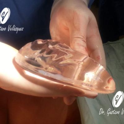 Implante - gluteos